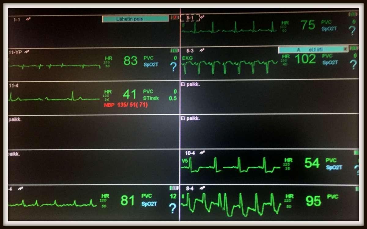 Jorvi S7 monitori